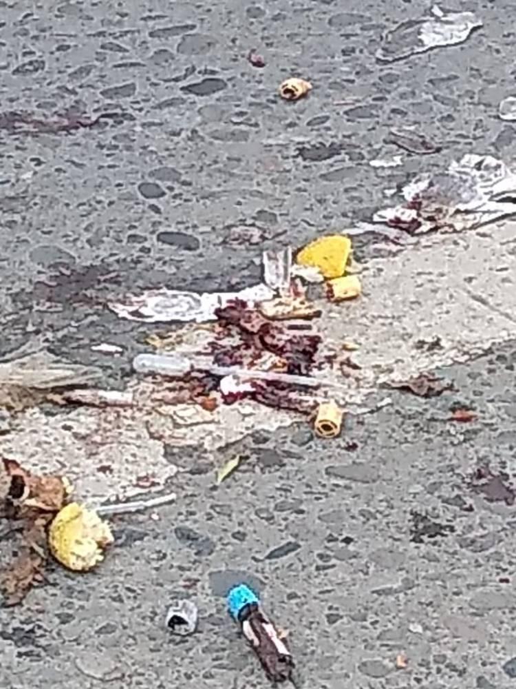 Autoridad investiga aparición de material biológico en el centro de Linares